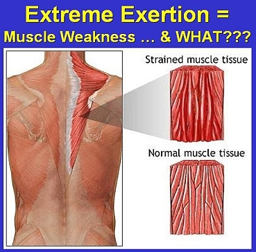 how does muscle contraction cause depth of respirations Tetanus is a serious bacterial infection that affects the nervous system and causes muscles throughout the body to tighten it's also called lockjaw because the infection often causes muscle.